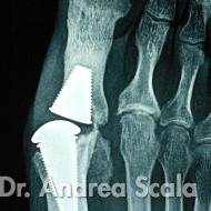Radiologia Patologia Piede