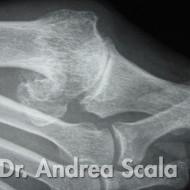 Immagini Radiologiche Piede