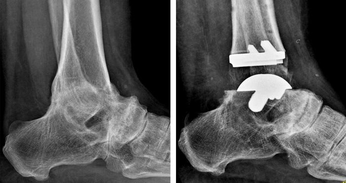 Protesi Caviglia Ecografia