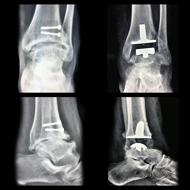 Protesi Caviglia